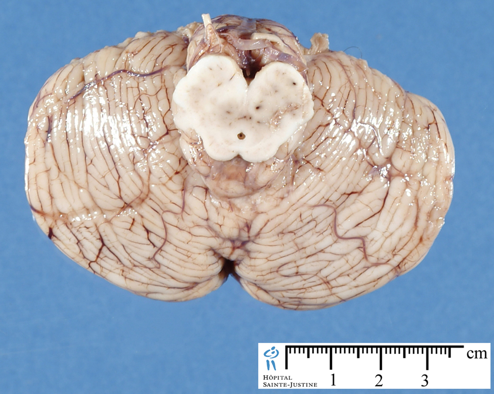the cerebellum The cerebellum is a central nervous system organ located directly behind the brainstem it occupies therewith the posterior cranial fossa below the cerebella.
