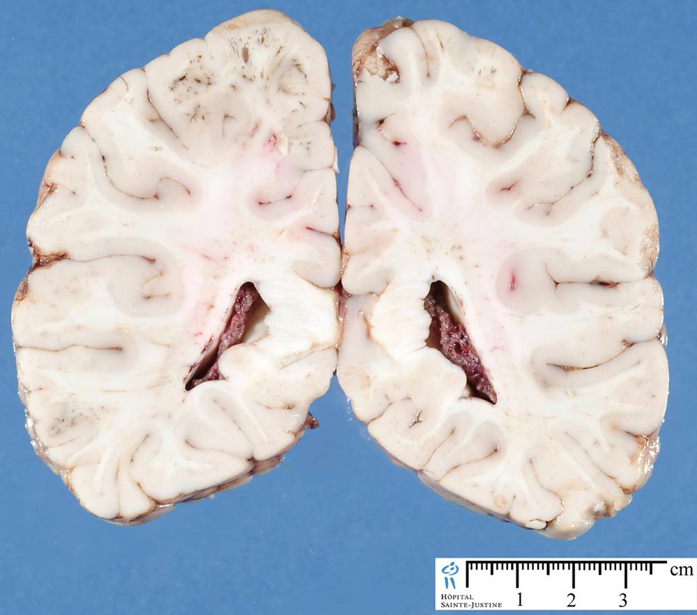 Choroid Plexuses Humpath Human Pathology