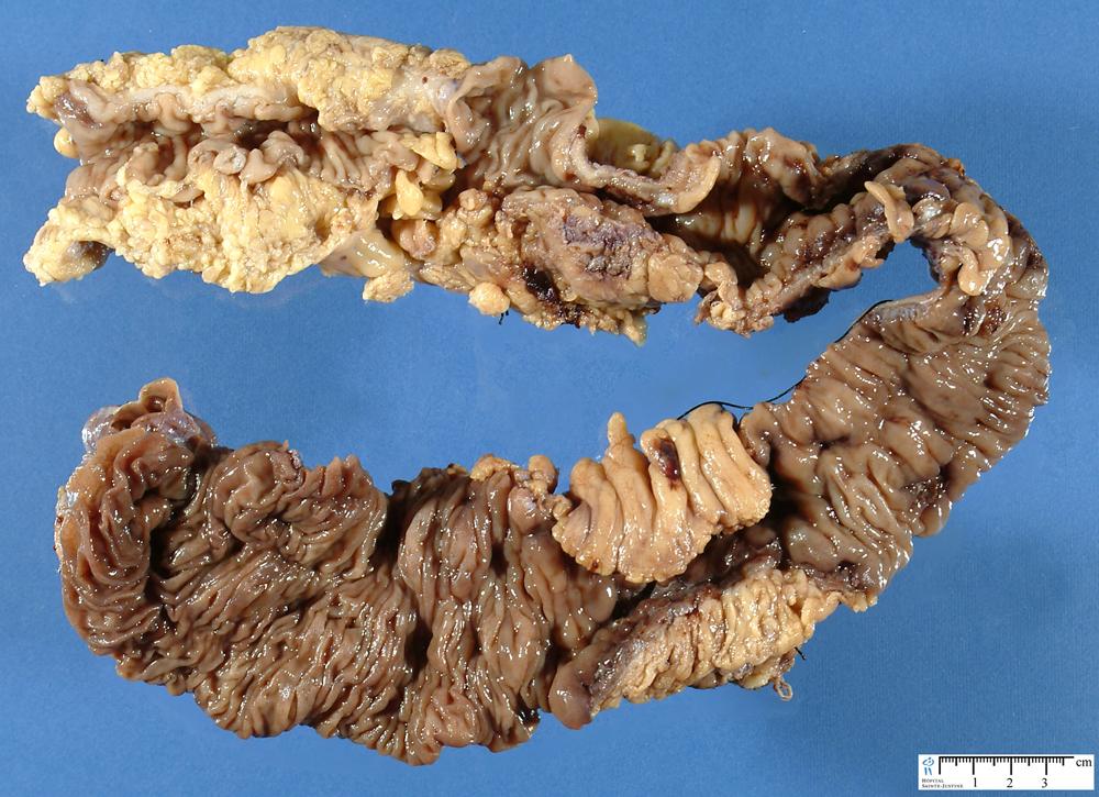 Endoscopic view of the ascending colon. The mucosal ... |Cobblestone Colon