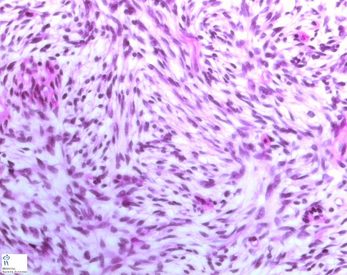 dermatofibrosarcoma protuberans histology
