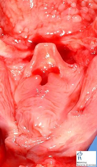 epiglottis - humpath com