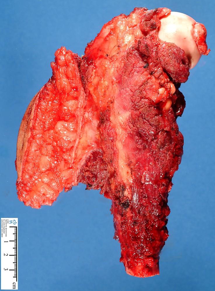 Ewing sarcoma - Humpath.com - Human pathologyEwing Sarcoma Karyotype