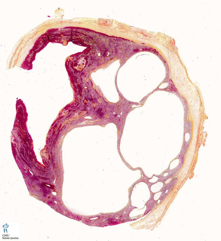 Hepatic mesothelial cysts