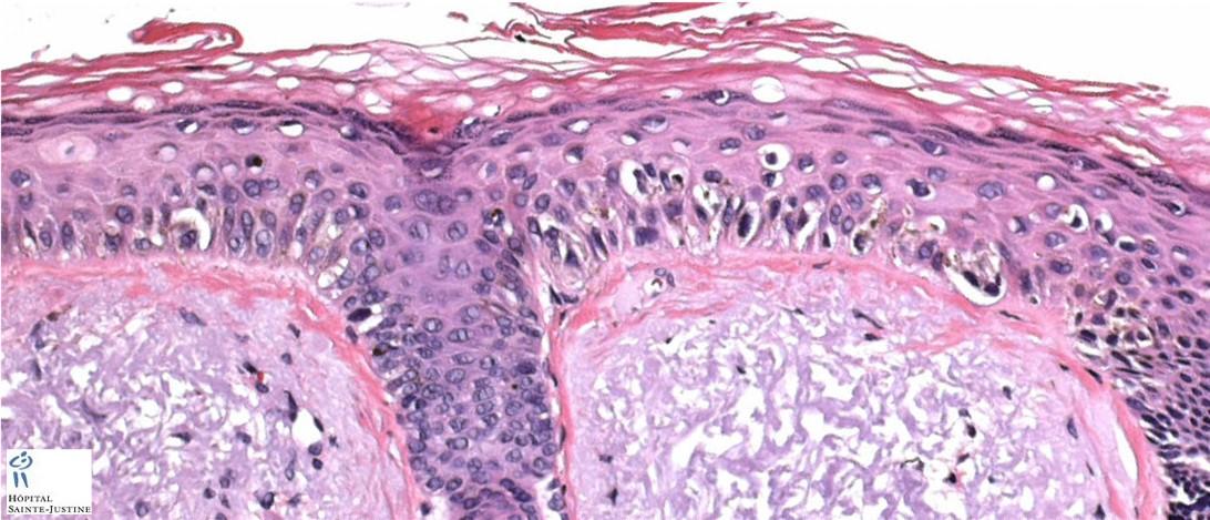 lentigo maligna melanoma humpathcom human pathology