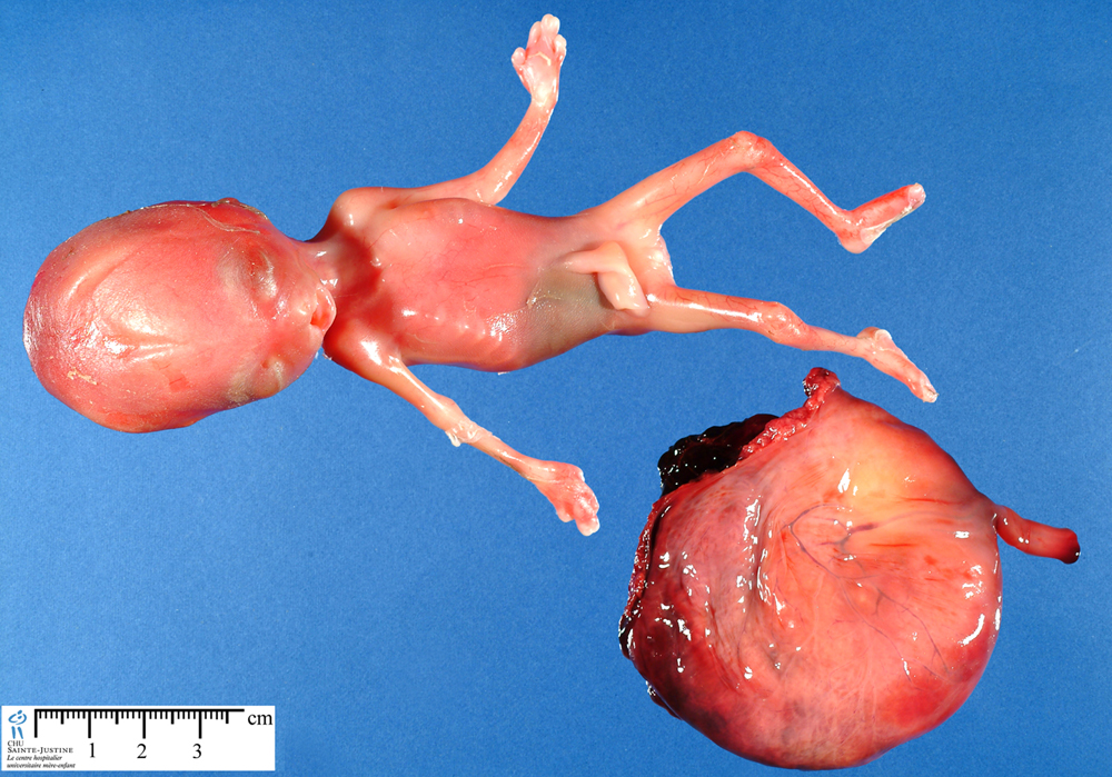 maternal triploidy - Humpath.com