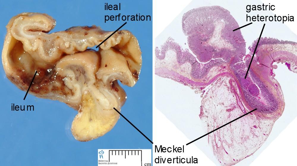 Meckel diverticulum - Humpath.com - Human pathology