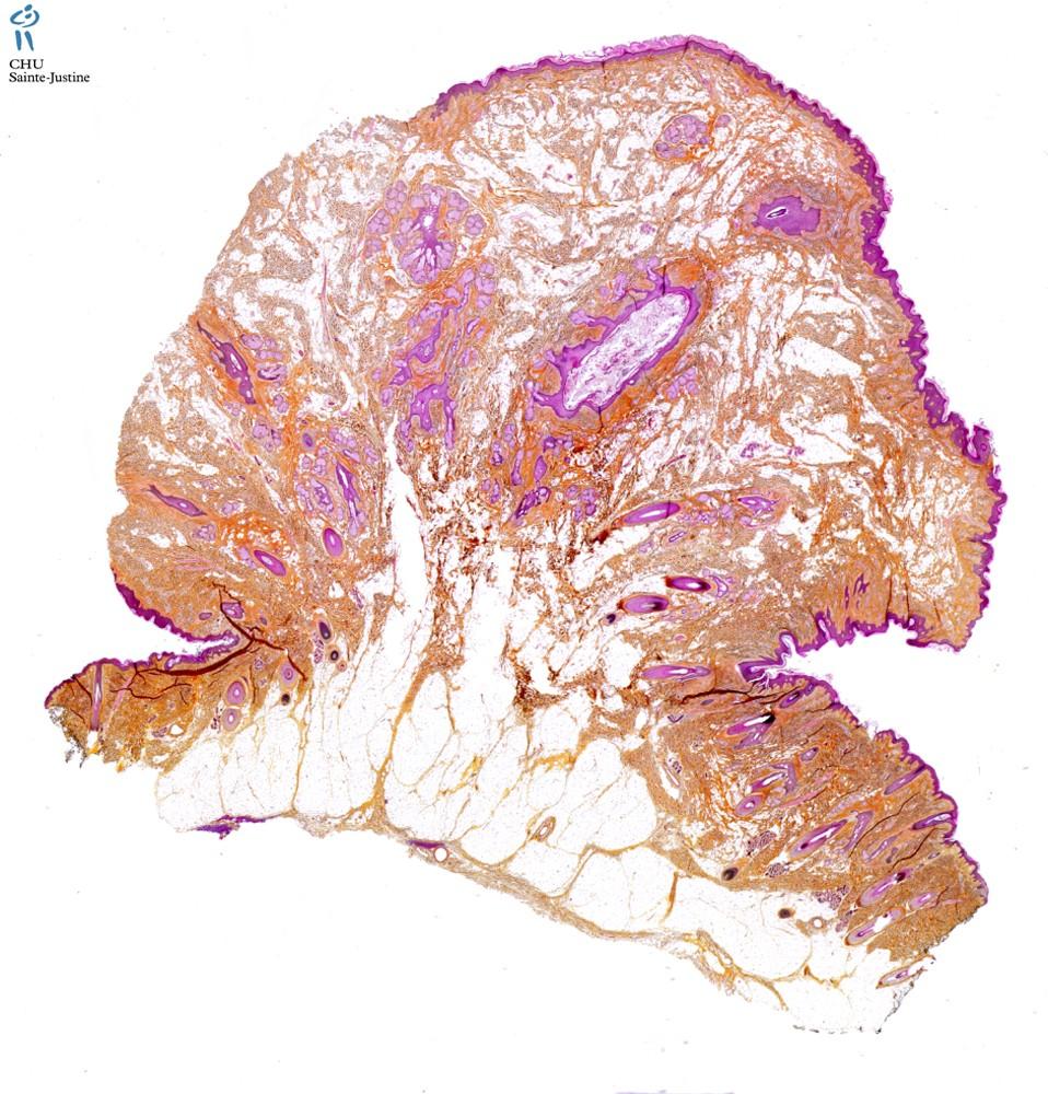 nevus lipomatosus