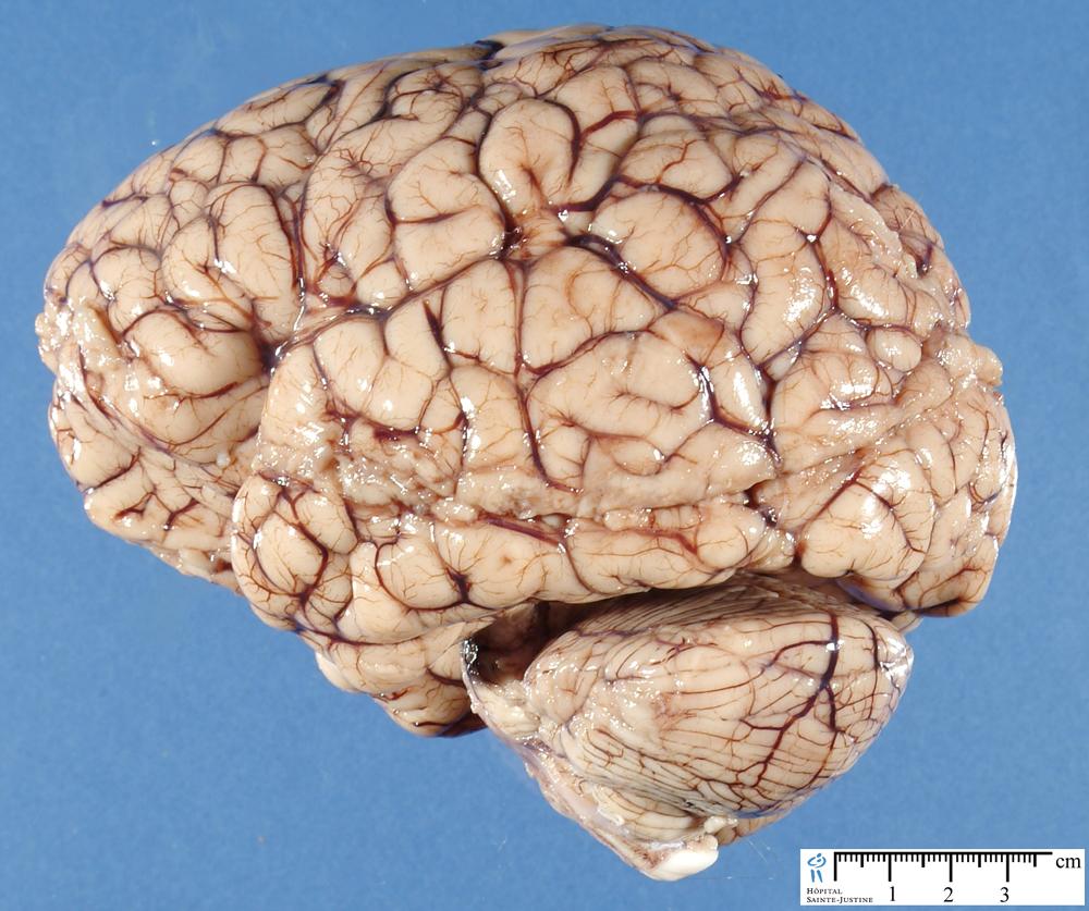 Normal Brain Y