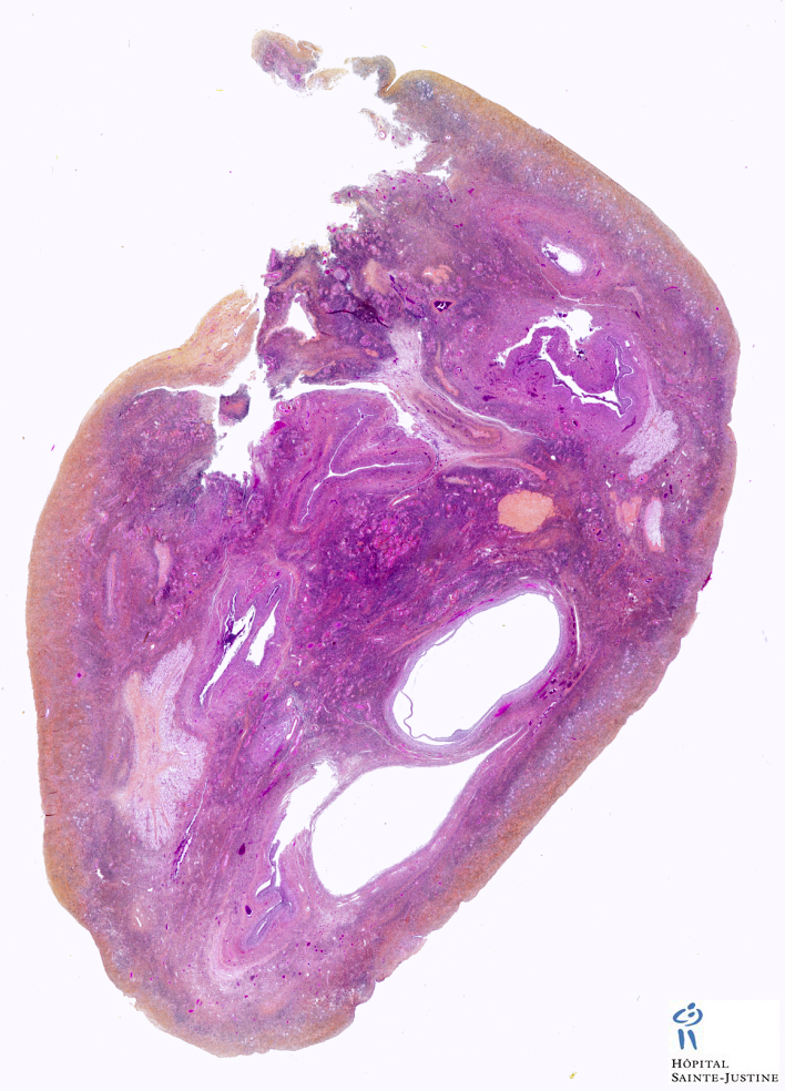 ovary  Humpath  Human pathology