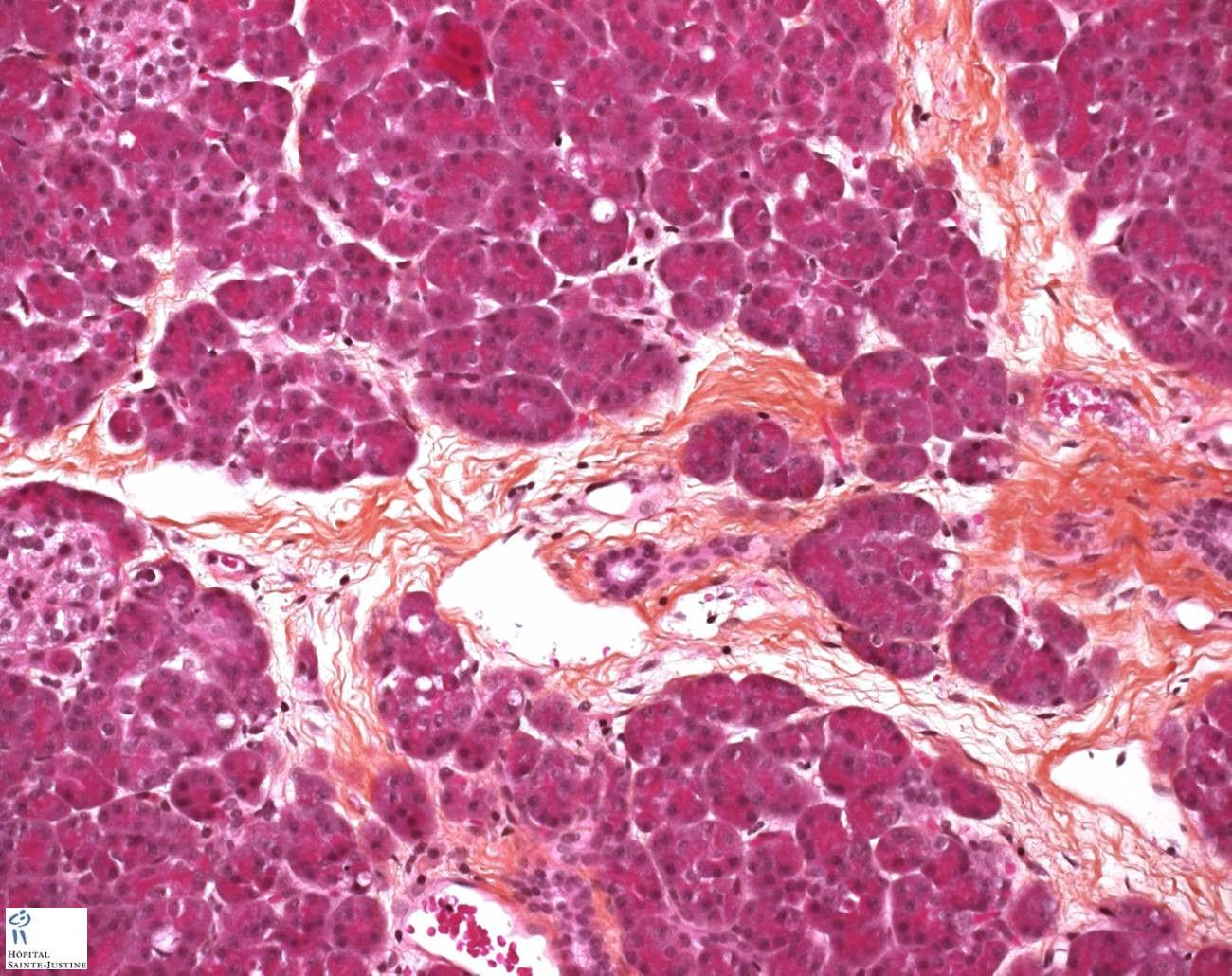 Normal Pancreas