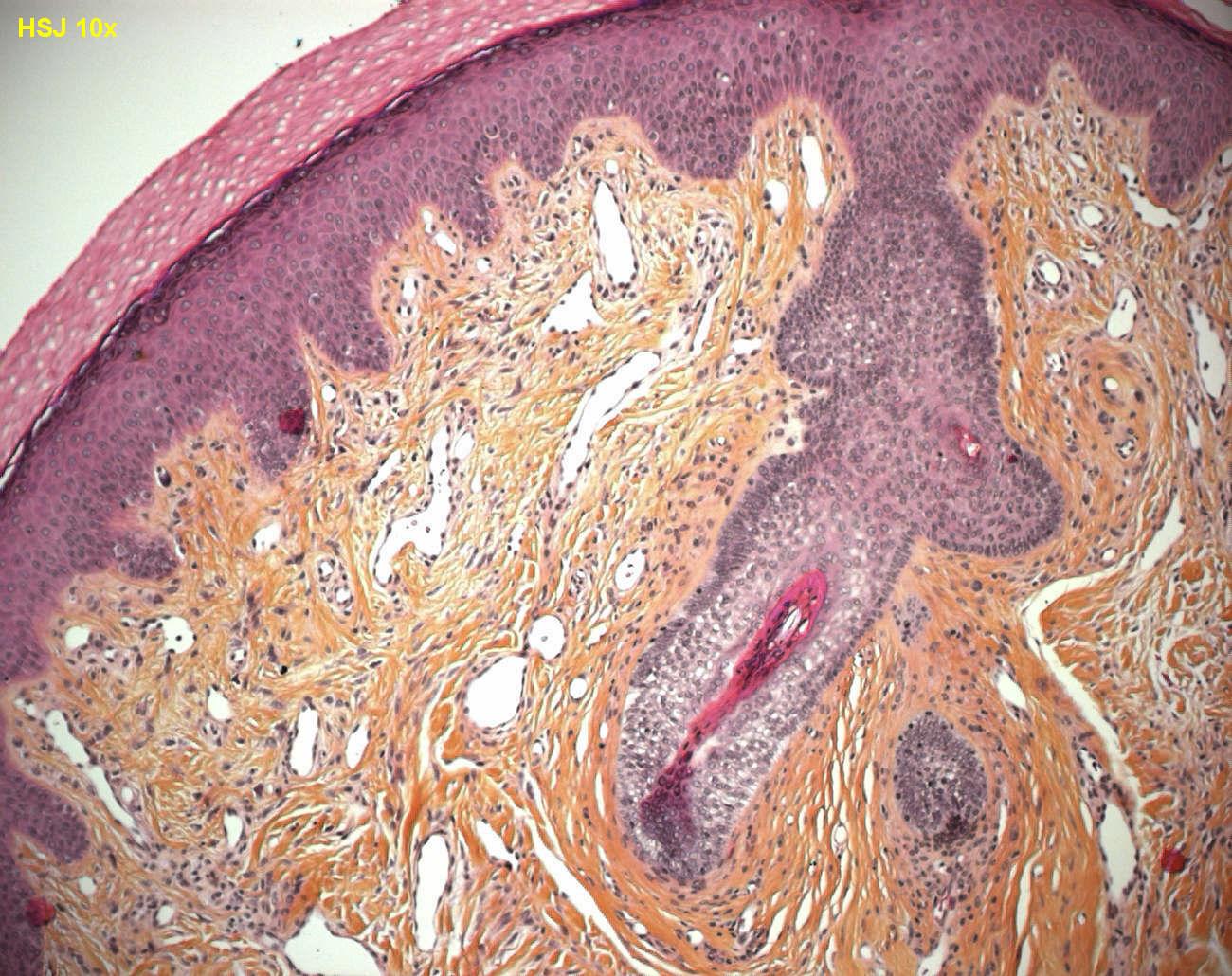 Cutaneous Angiofibroma Humpath Com Human Pathology