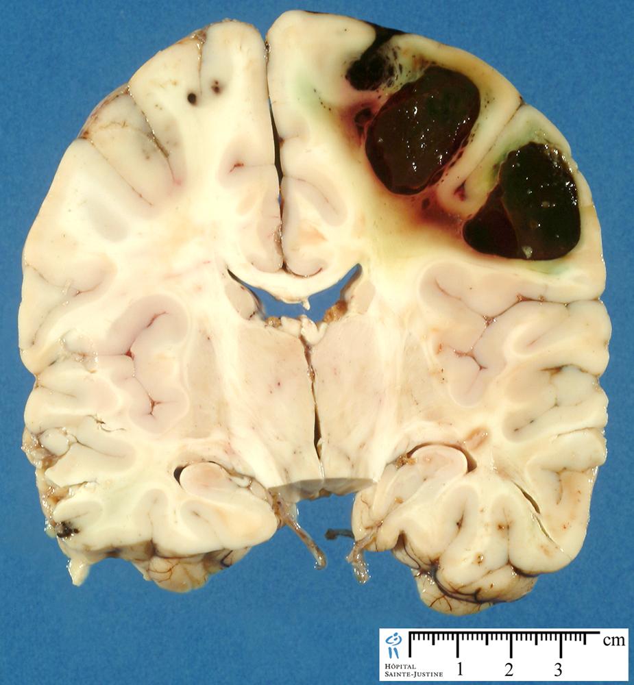 Paracoccidioidomycosis case study