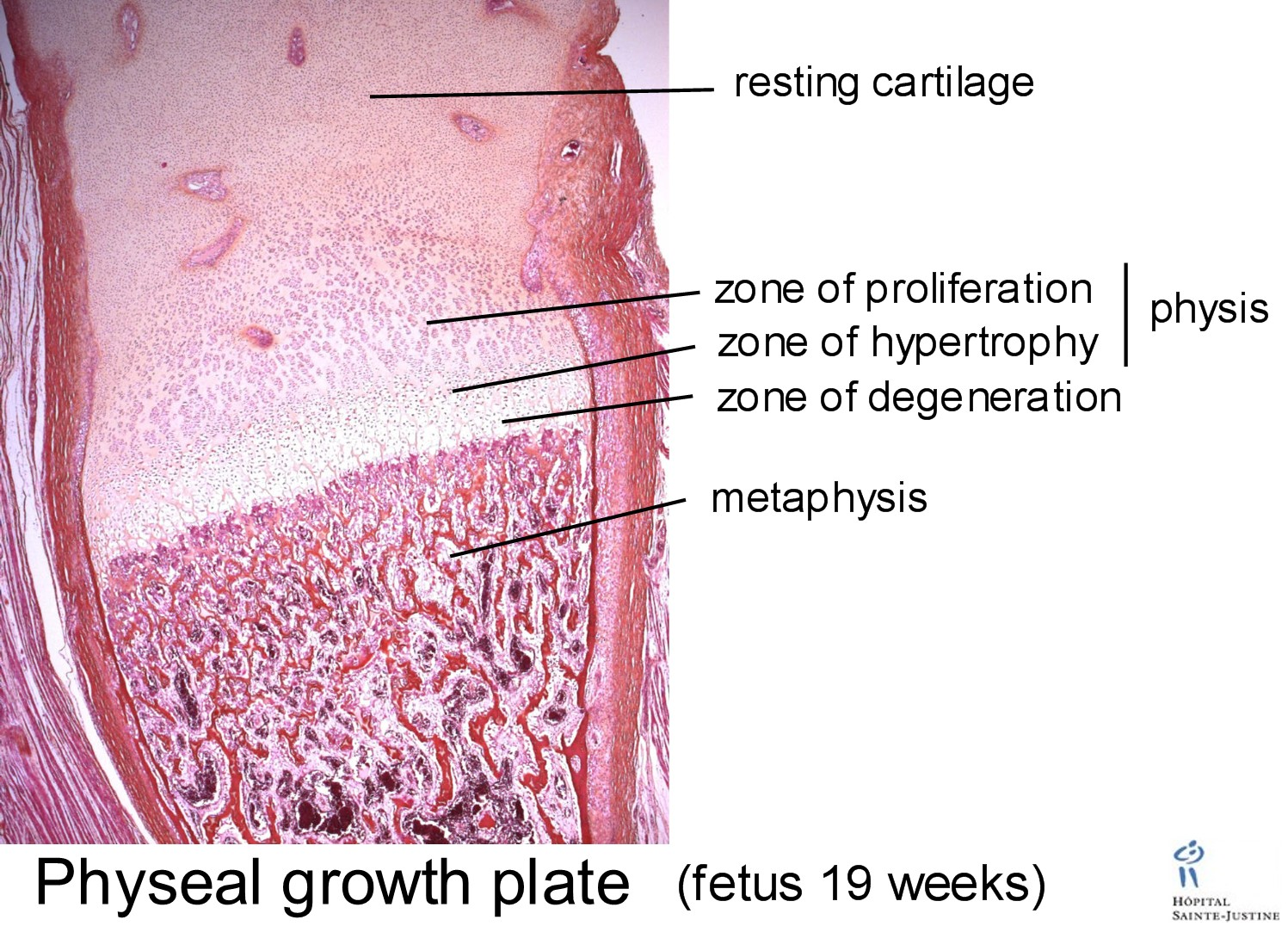 Growth Plate Zones of Cartilage