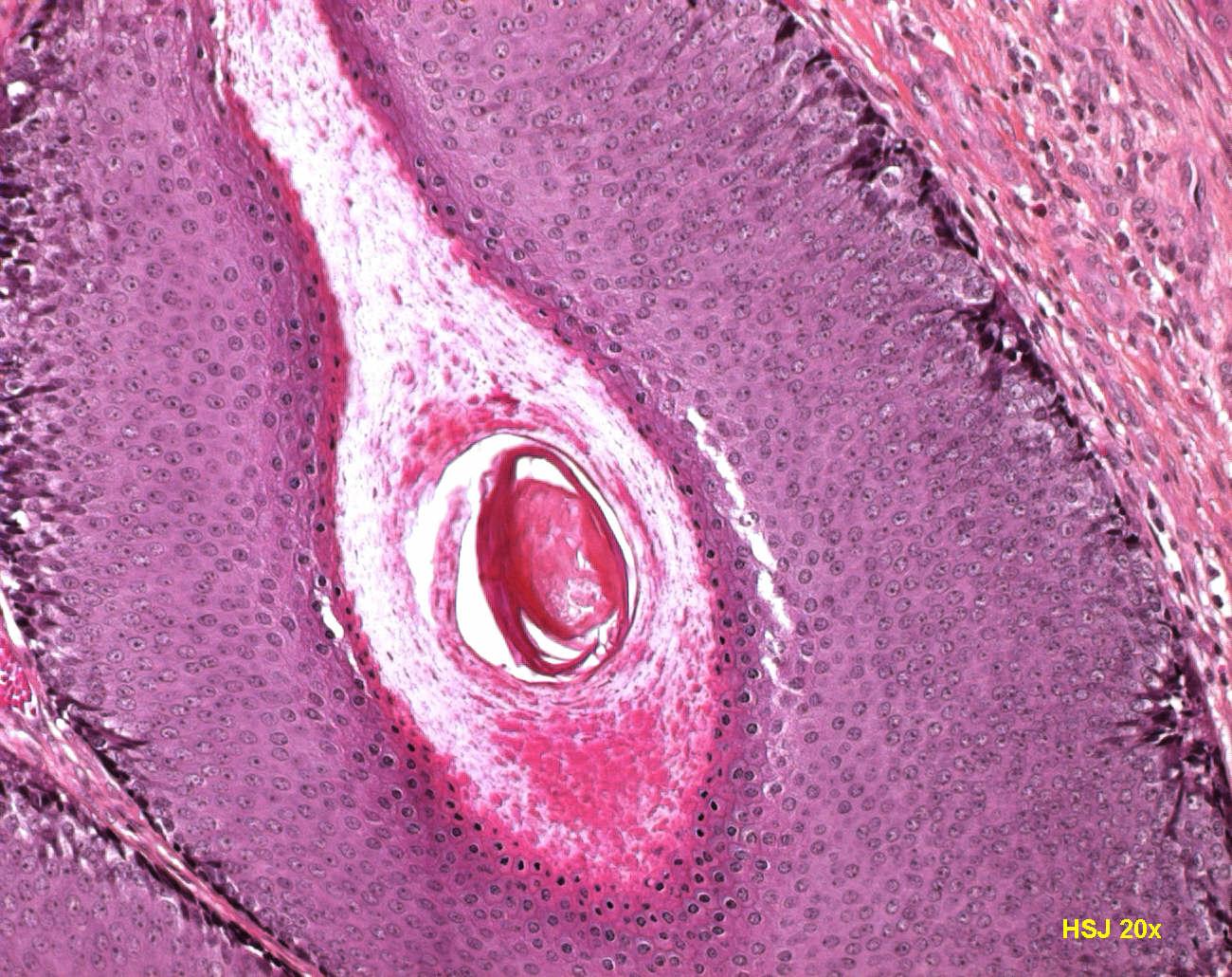 Pilomatrixoma: Background, Pathophysiology, Epidemiology