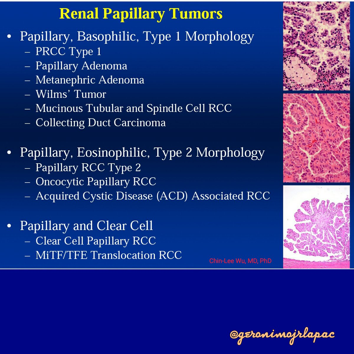 Collecting Duct Urinary System papillary renal cell c...