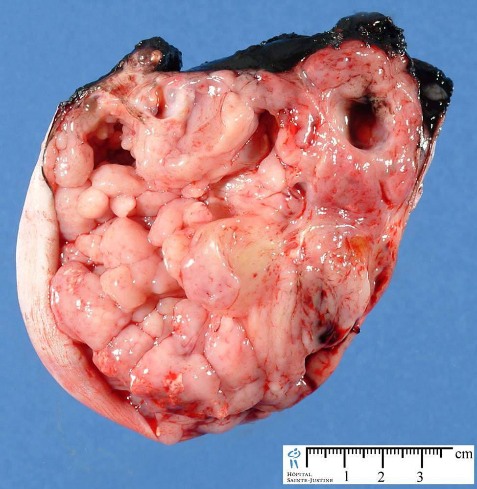 sacrococcygeal teratoma - Humpath.com - Human pathology
