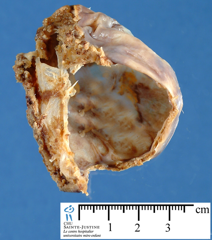 abdominal mesothelial cyst