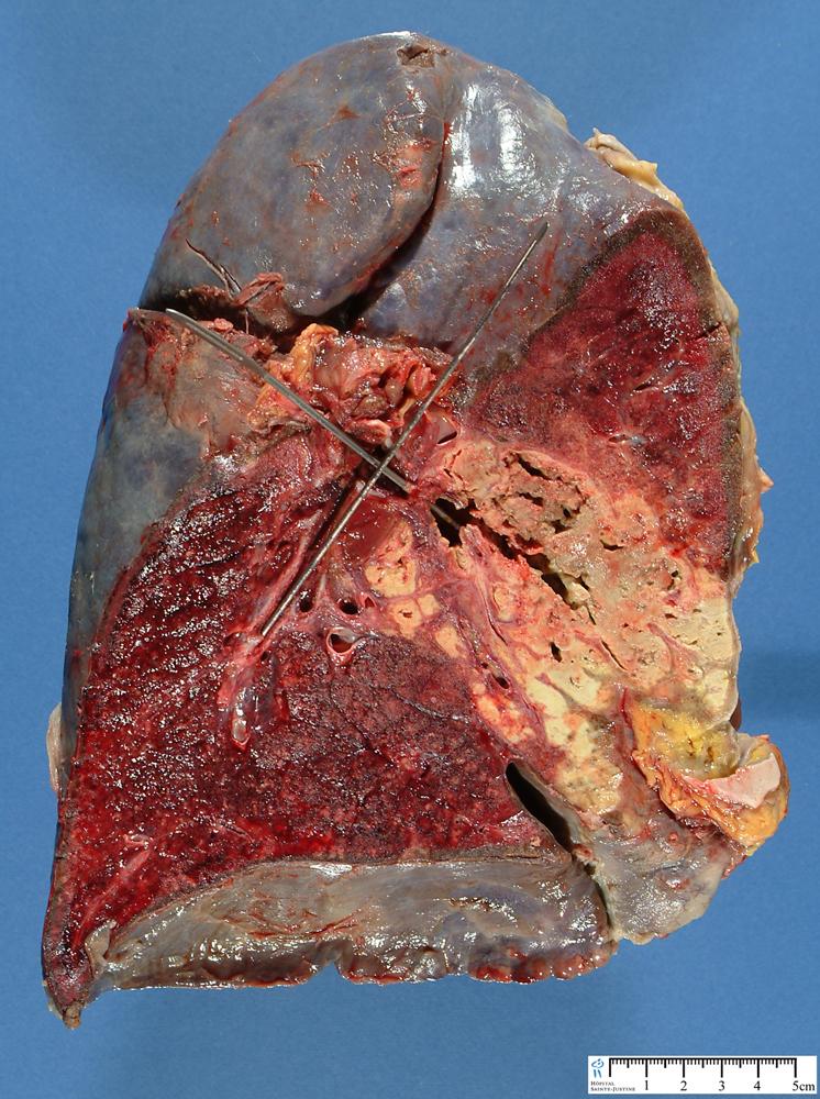 pulmonary granulomatosis with polyangiitis