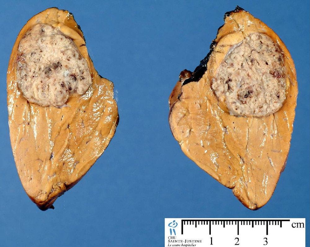 hepatic tumors - Humpath.com - Human pathology