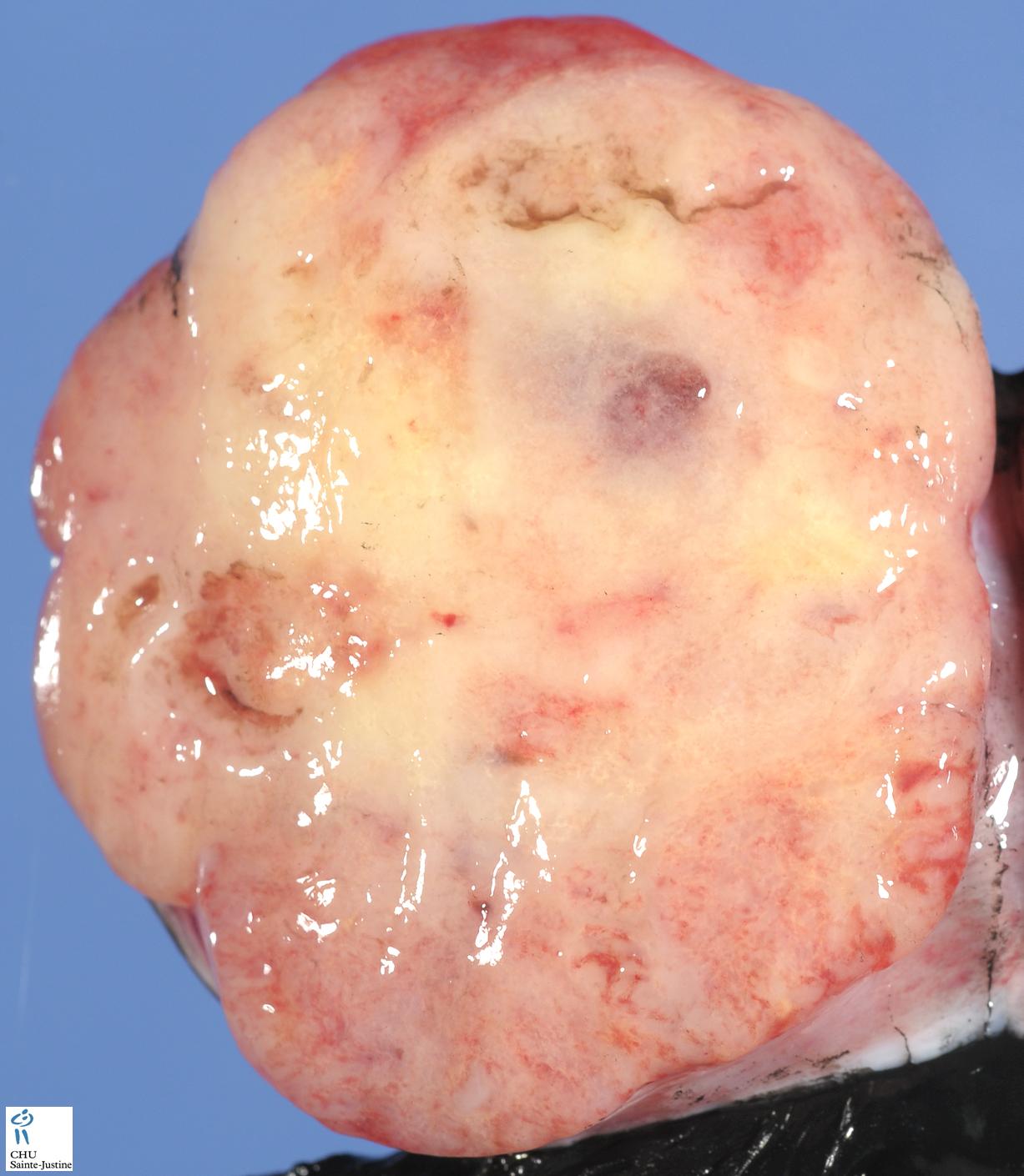 the tumors