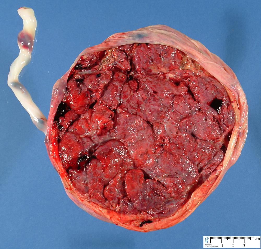 Normal Placenta Humpath Com Human Pathology