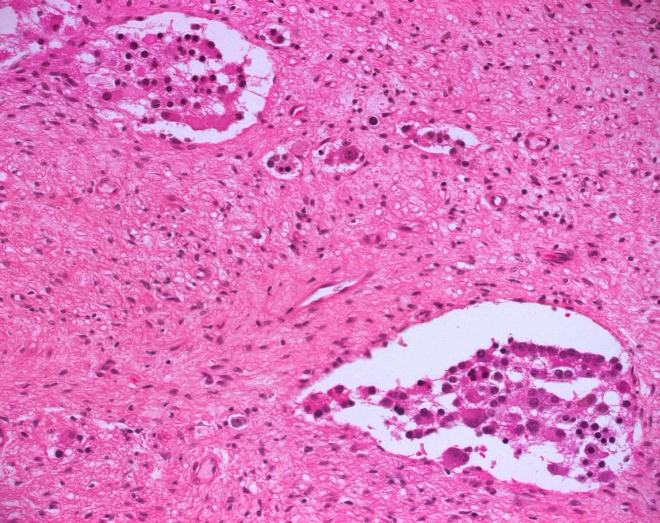 pelvic ganglioneuroblastoma humpathcom human pathology