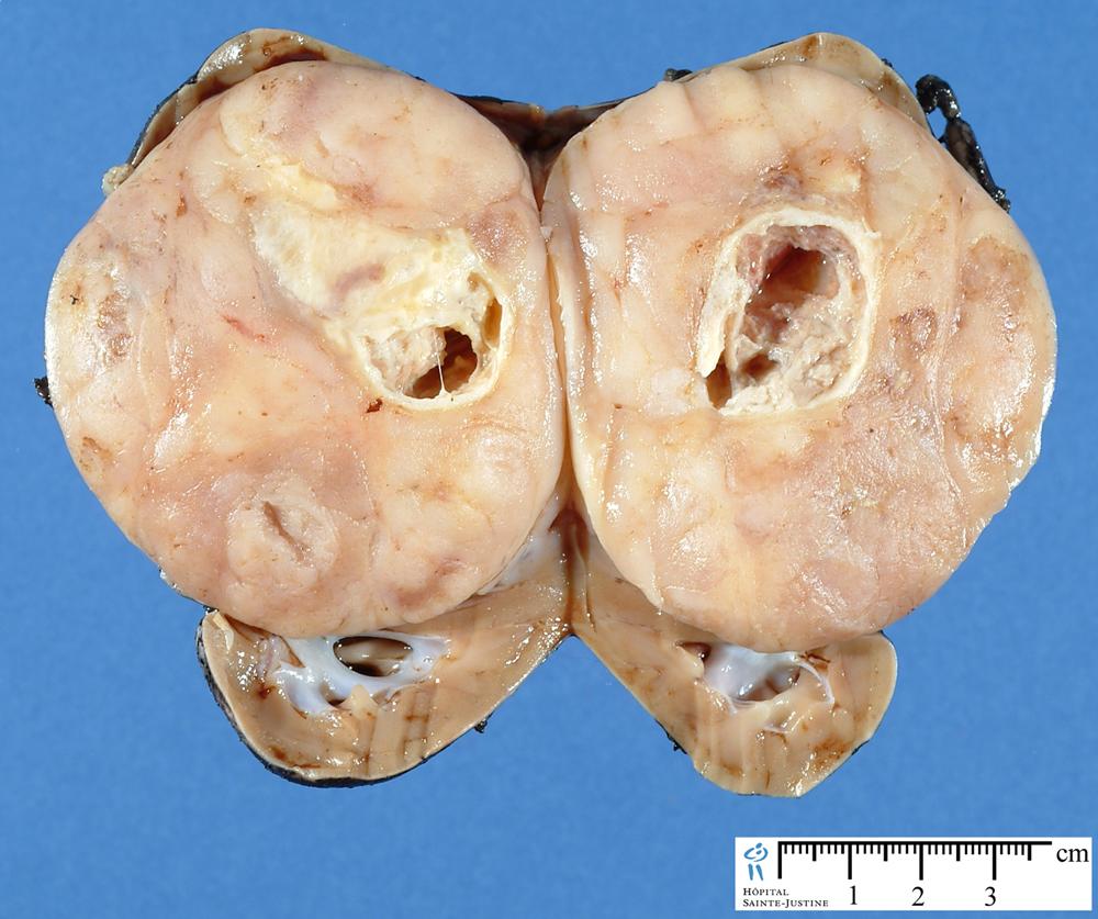 renal tumors - Humpath.com - Human pathology