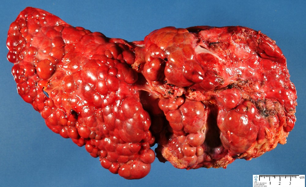 Primary Biliary Cirrhosis Natural Treatments