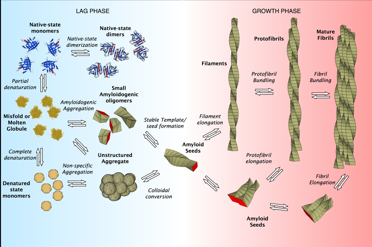 Amyloid Deposit Humpath Com Human Pathology