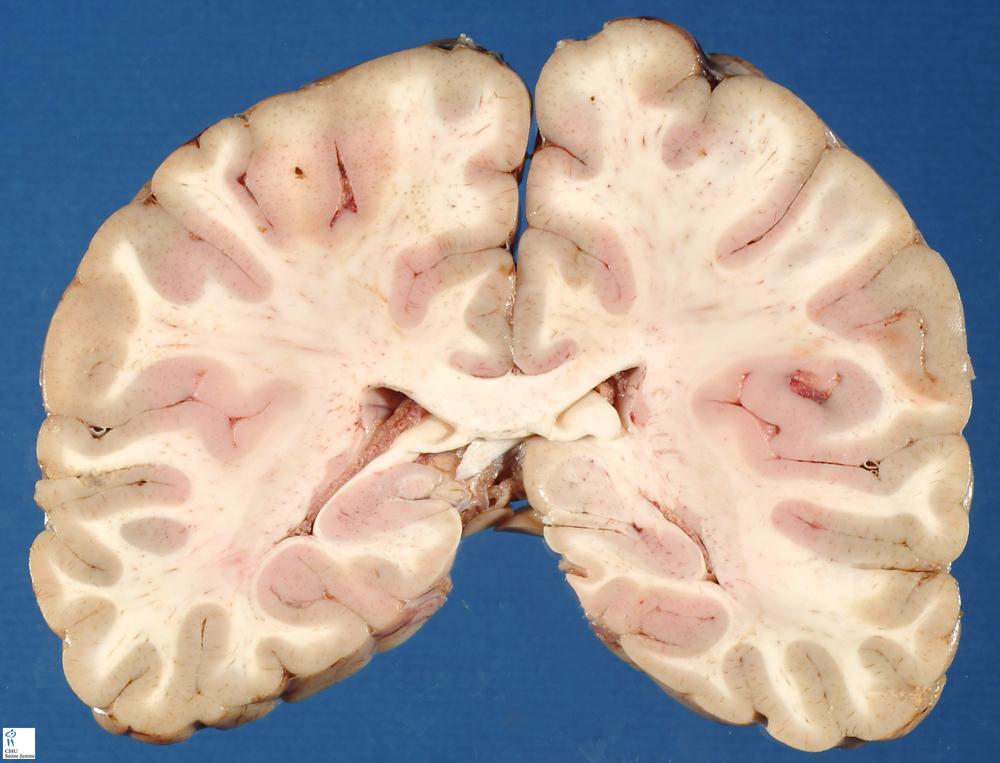 Jpg Brain Front Cut