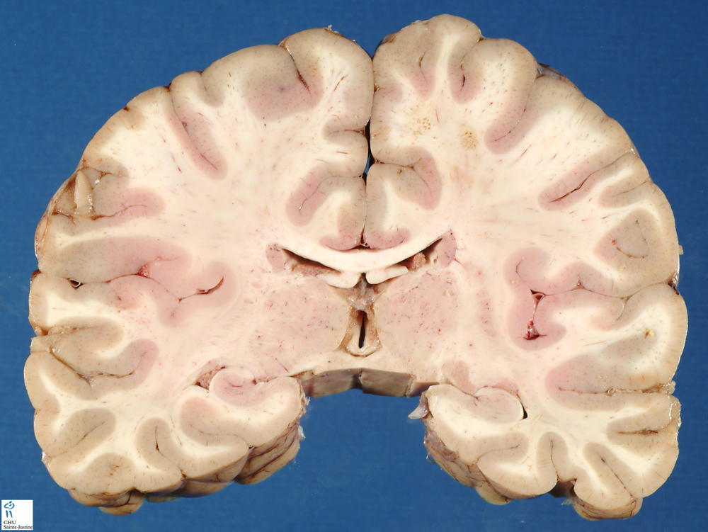 Brain Frontal Section 3 - Humpath Com