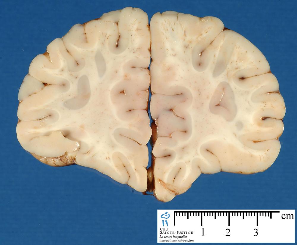 brain frontal section 2 humpathcom human pathology