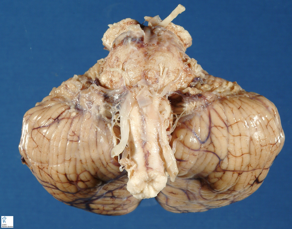 brain frontal section 3 humpathcom human pathology