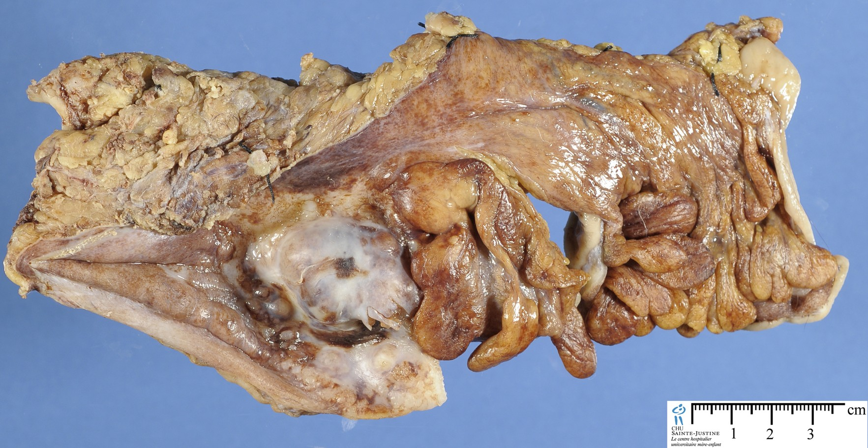 Colorectal Adenocarcinoma - Humpath Com
