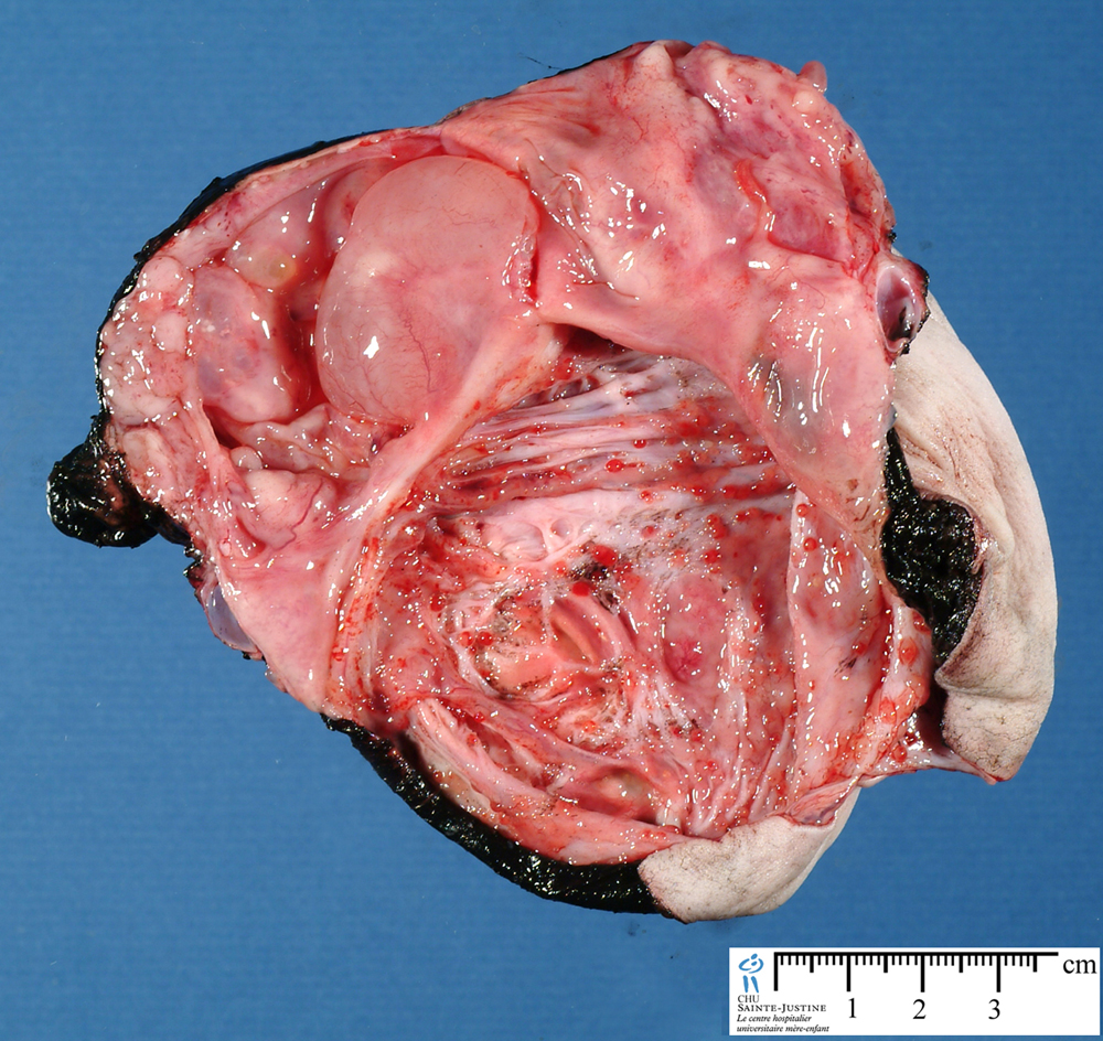 sacrococcygeal teratoma - Humpath.com - Human pathology