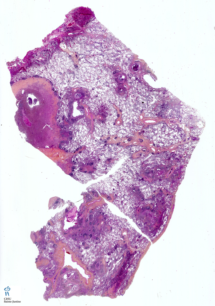 Jpg Cystic Fibrosis Lung D