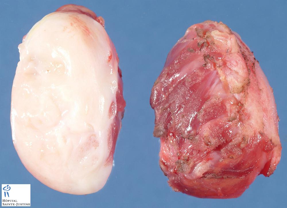 extra-abdominal desmoid fibromatosis - Humpath.com - Human pathology
