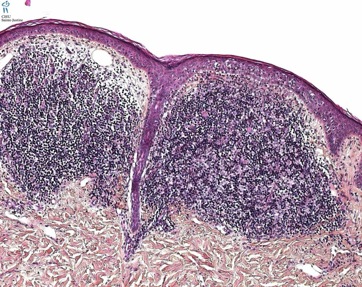 Granuloma Inguinale Humpath Com Human Pathology