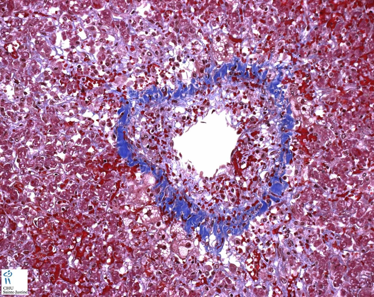 Jpg Hepatic Venoocclusive Disease