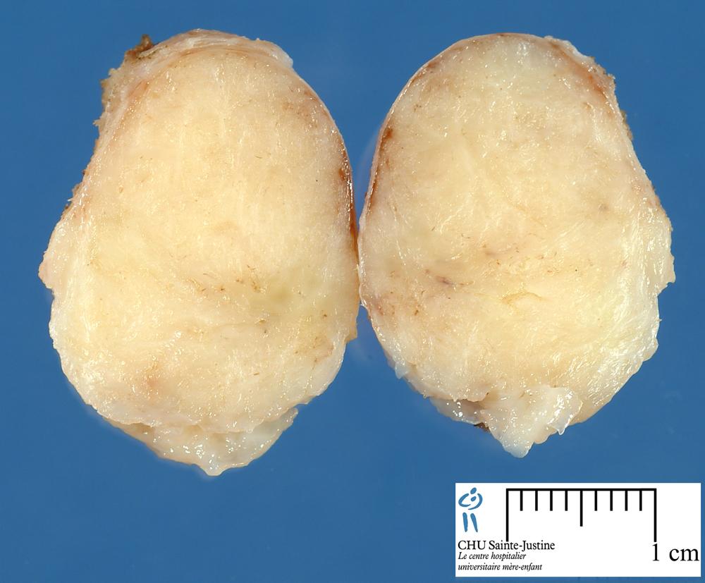 mammary fibroadenoma - Humpath.com - Human pathology