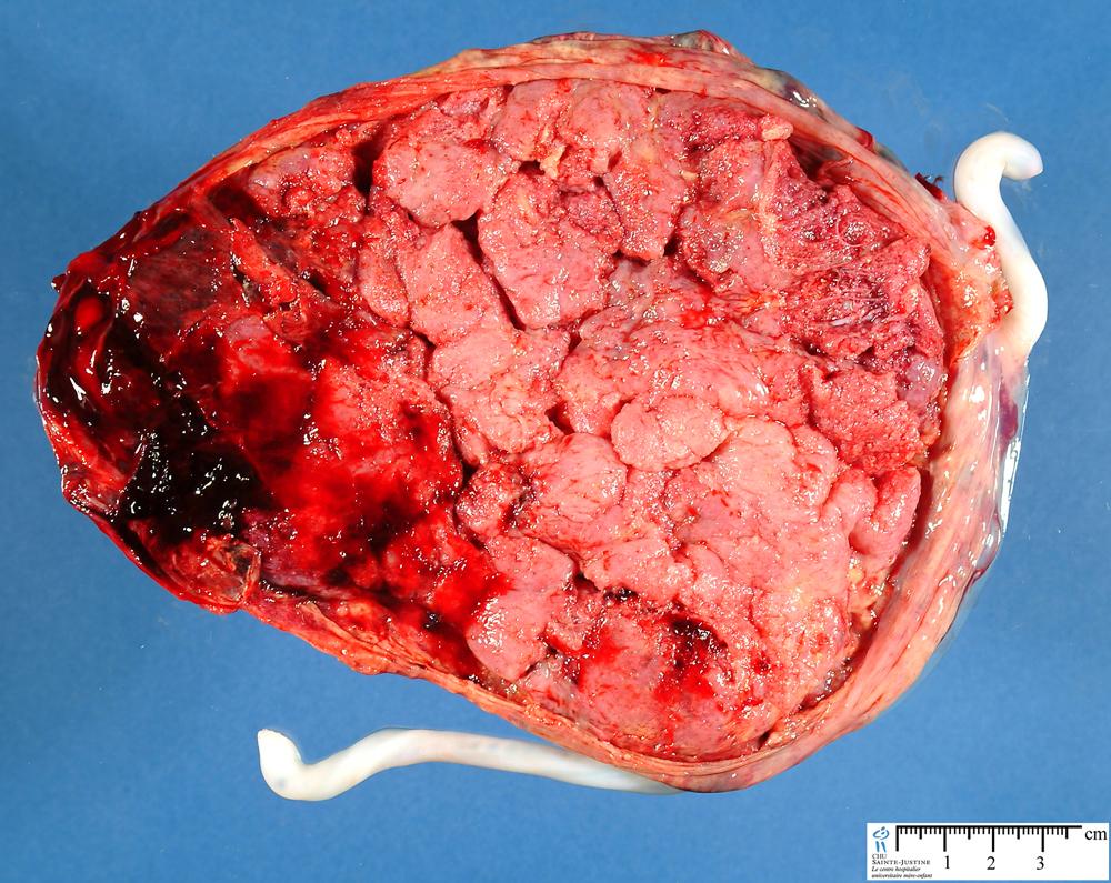 Jpg Monochorionic Monoamniotic Gemellar Placenta