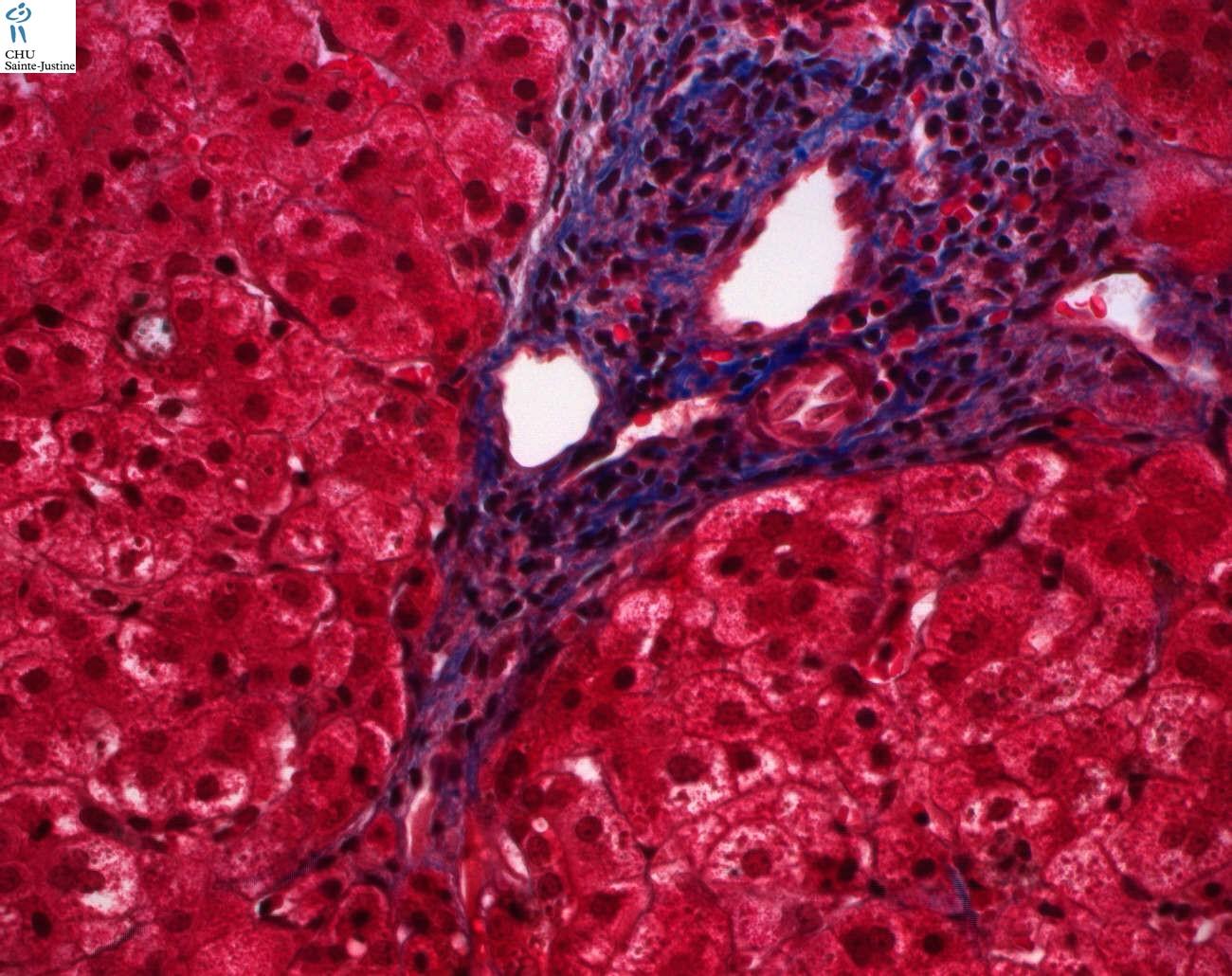 vanishing bile duct syndrome pdf