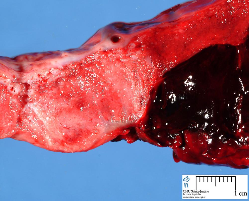 Hematoma - Humpath.com - Human pathology
