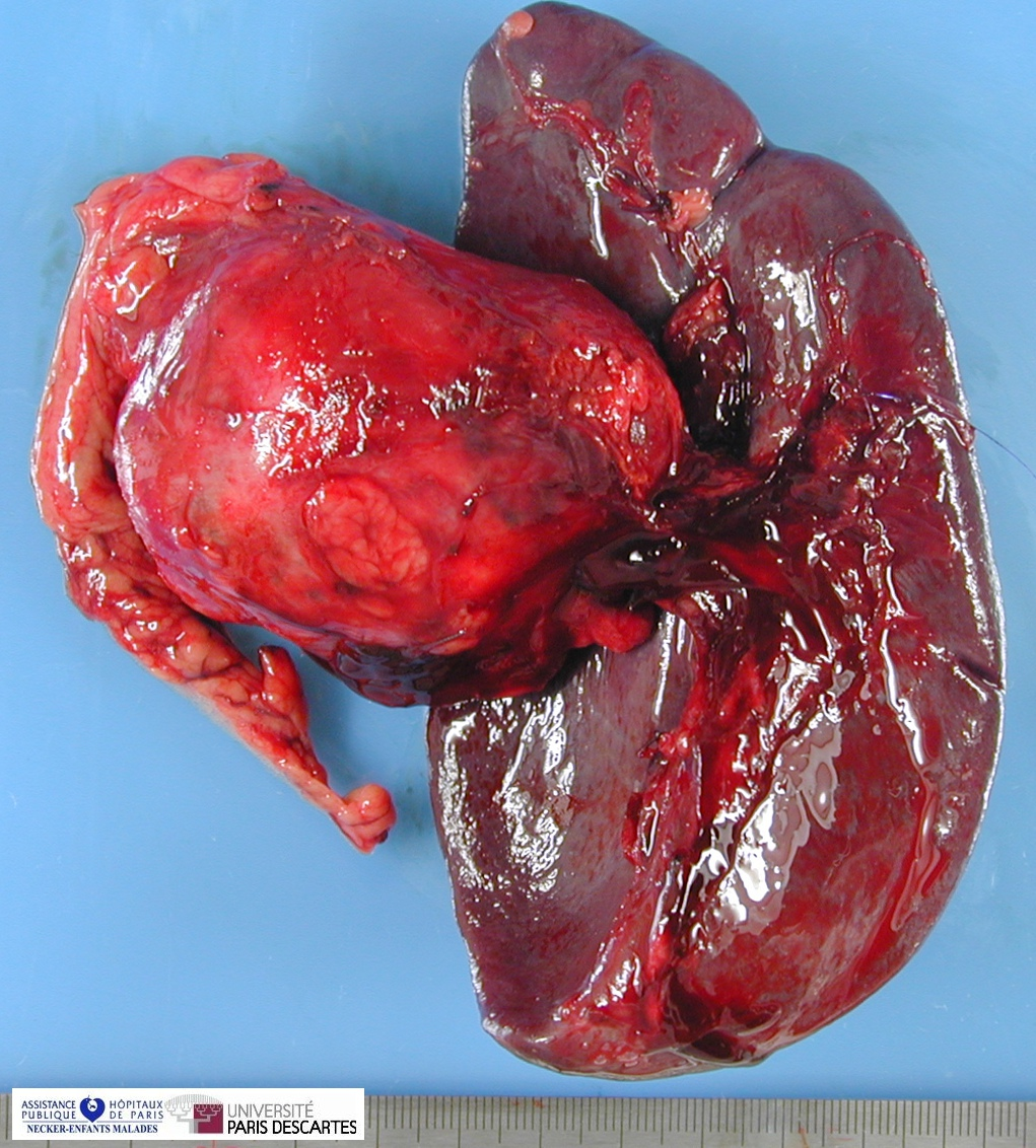 Pancreatic Solid Pseudopapillary Tumor - Humpath Com