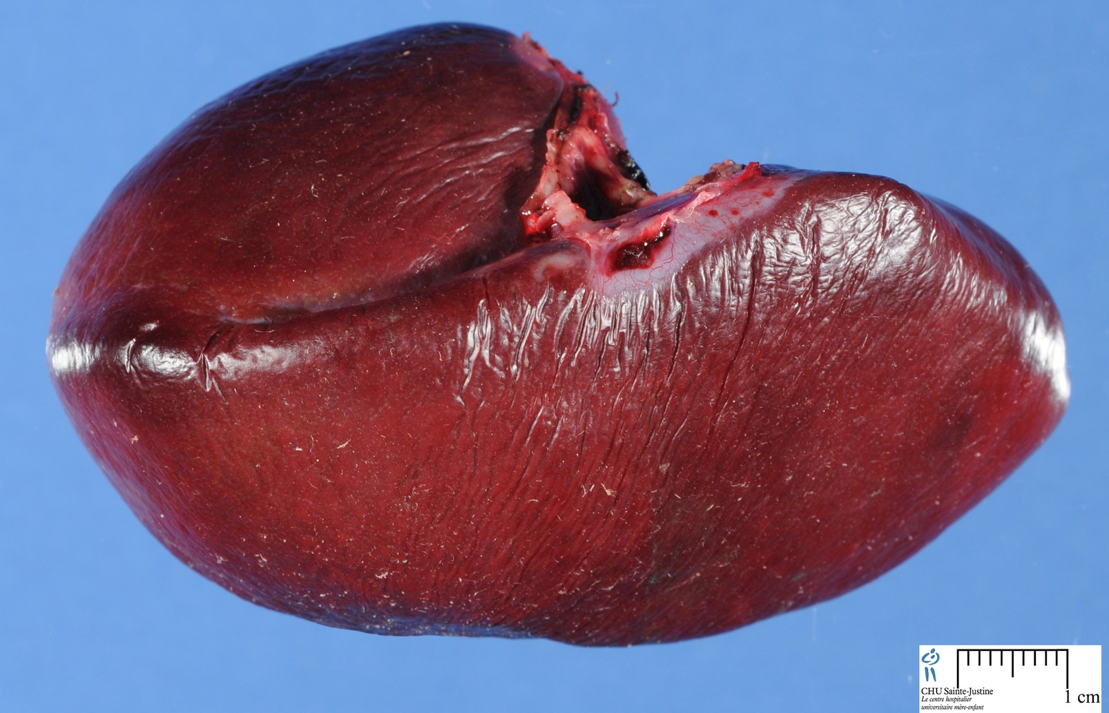 What Can Cause An Enlarged Liver In Dogs