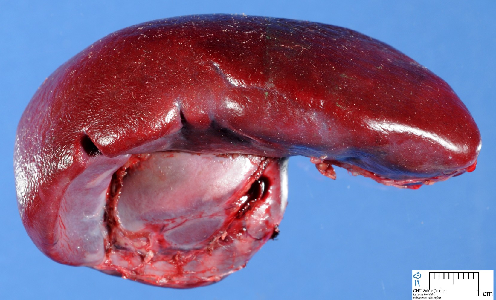 How Human Spleen Filters Out Diseased Blood Cells The People Post