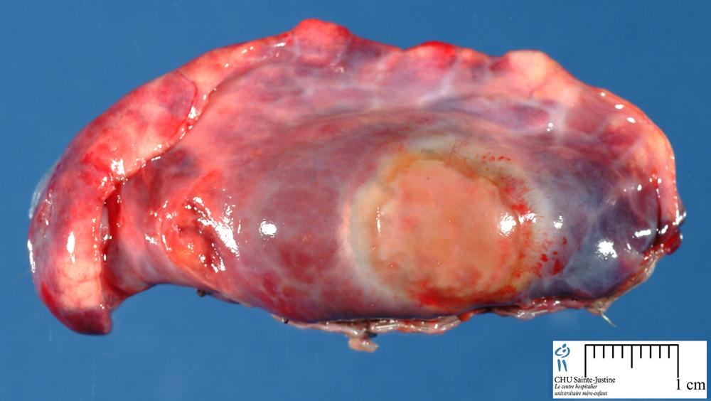 subpleural nodules on lungs