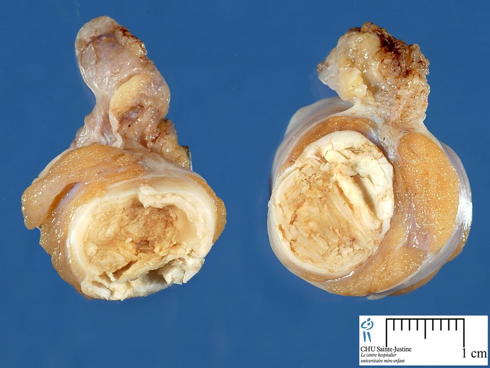 Testicular Dermoid Cyst