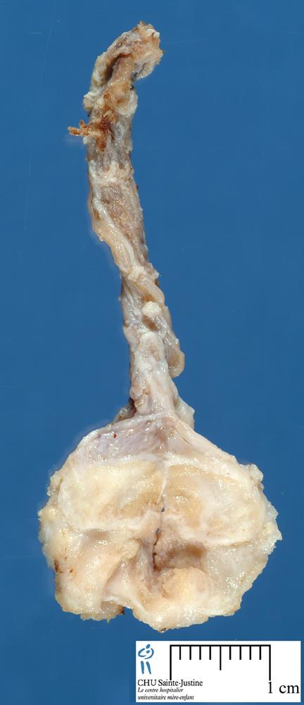 Cryptorchidism In Humans testicular hypoplasia ...