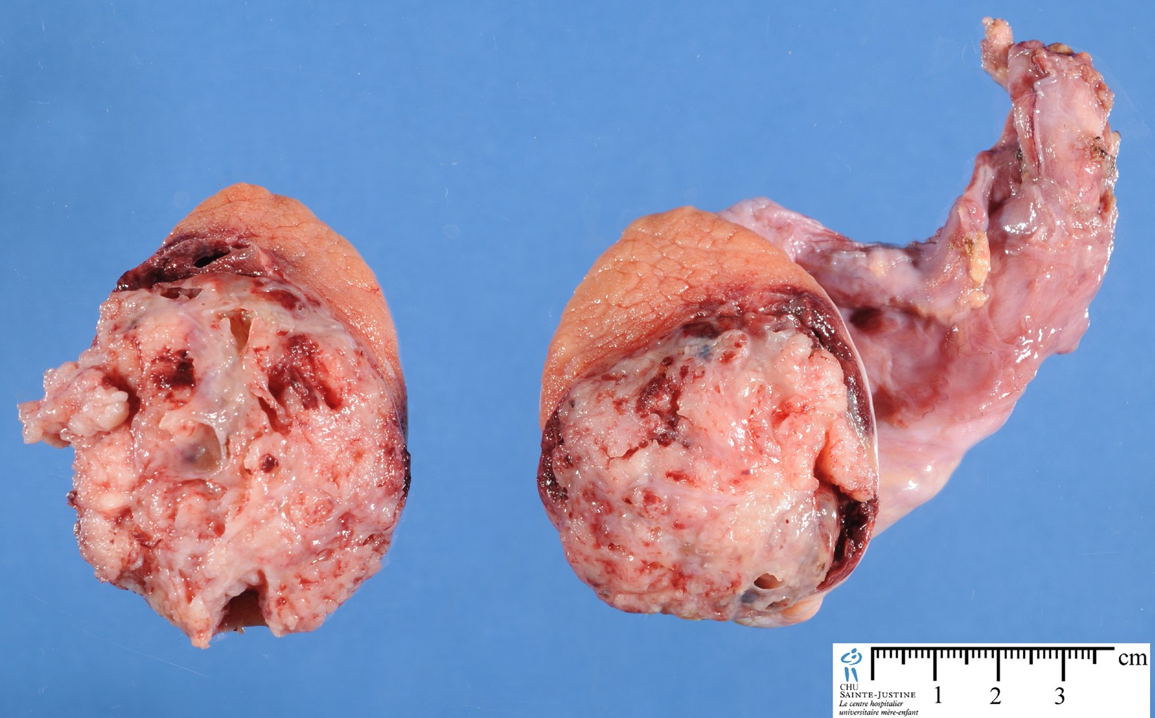 Testicular mixed germ cell tumor